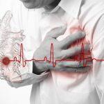 Un video che mostra come avviene un infarto